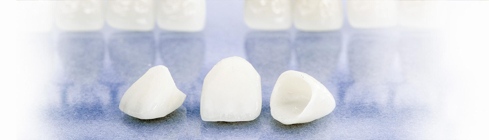 laboratoire de protheses dentaires